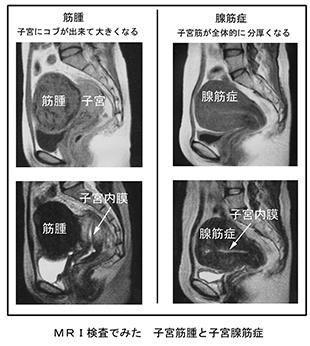 内 症 症状 子宮 膜 増殖