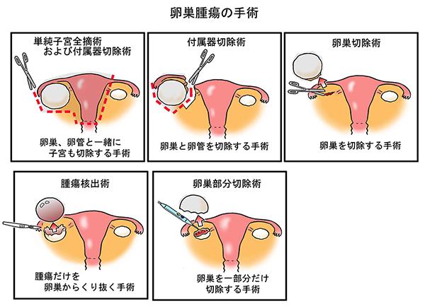 川崎市 はるひ野 若葉台 稲城市 婦人科専門医 いばらきレディースクリニック症状から考えられる婦人科疾患